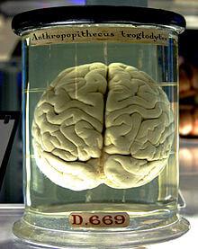 Le cerveau d'un psychotique